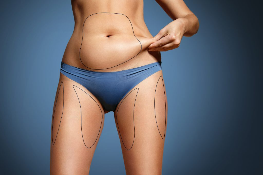 5 Reasons Your Medispa Needs CoolSculpting Insurance